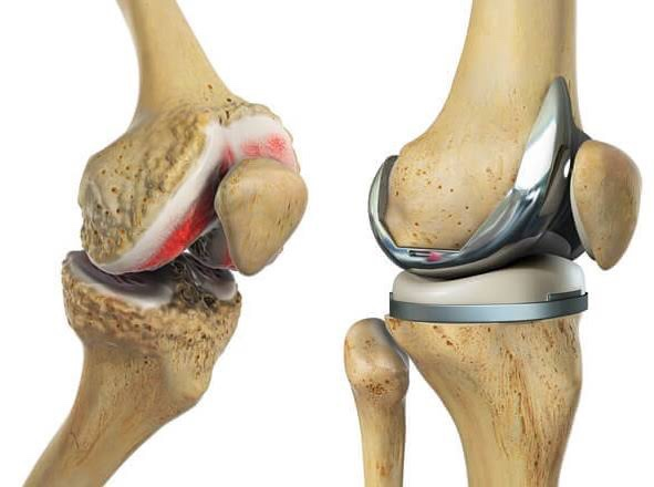 Knee Replacement Physiotherapy